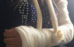 Mulher é espancada e tem braço quebrado por marido em VG