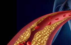 Pesquisa abre nova frente para o diagnóstico precoce de aterosclerose
