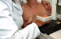 Aprovado projeto que susta portaria com restrições à mamografia em mulheres abaixo de 50 anos   Fonte: Agência Senado