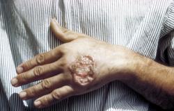 Pesquisa da USP descobre como vírus deixa Leishmaniose mais agressiva