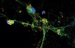 Descoberta de mecanismo imune envolvido na COVID-19 abre caminho para novo tratamento