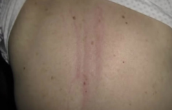 Mulher tenta matar marido que chegou em casa com costas arranhadas em MT