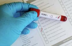 Secretaria Municipal de Saúde emite alerta sobre Influenza