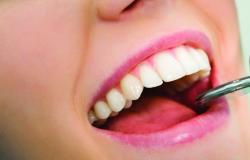 Agentes comunitários de saúde passam por capacitação para identificação de câncer bucal