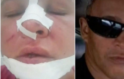 Marido quebra nariz de esposa na frente de crianças em VG