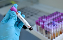 Brasil tem oito casos confirmados de novo coronavírus