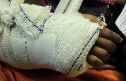 Menina vai passear na casa do pai e tem braço quebrado pela madrasta em MT