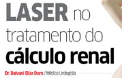 Laser no tratamento do cálculo renal