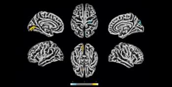 Exames de ressonância magnética feitos na Unicamp em 81 pacientes com sintomas neuropsiquiátricos pós-COVID revelam alterações na estrutura do córtex cerebral. As áreas em amarelo apresentam redução na espessura cortical. As marcas azuis correspondem a áreas com espessura aumentada (imagem: www.medr