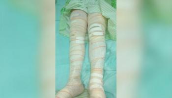 FEMINICÍDIO - mulher que teve 45% do corpo queimado por marido vem a óbito