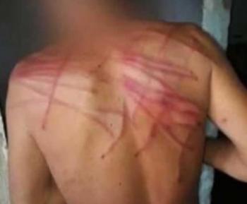 Bandidos invadem casa e aplicam um Salve em homem com 50 chibatadas em MT
