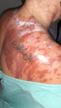 Homem faz mulher confessar traição e a queima com creolina em MT