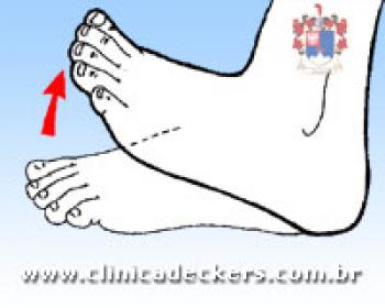 Exercícios para pés e tornozelos
