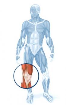 Entorse de joelho ou Lesão do Ligamento cruzado anterior (LCA)