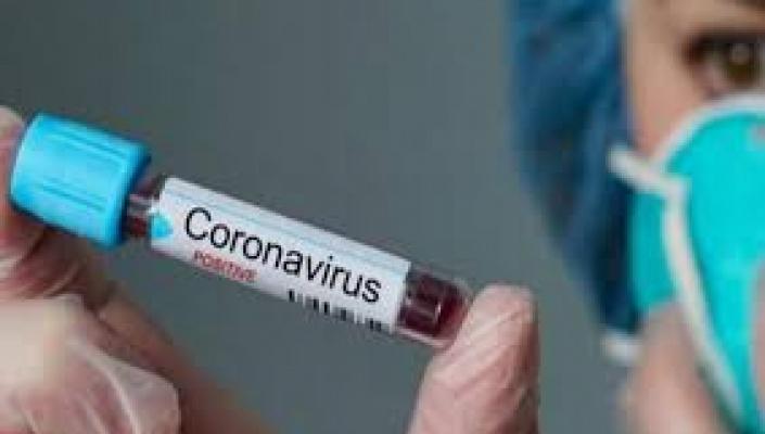 Brasil tem mais de 320 mortes e passa de 8 mil casos de coronavírus