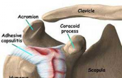 Intervenções Fisioterapêuticas na  Capsulite Adesiva ou Ombro Congelado