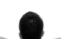 Torcicolo: o que é, e como evitar